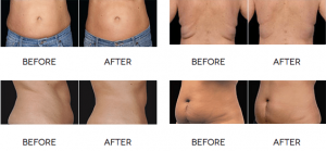 Coolsculpting Fort Lauderdale
